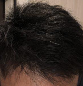 初期 脱毛 プロペシア AGA治療で見られる初期脱毛とは?